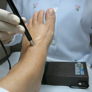 podología clínica